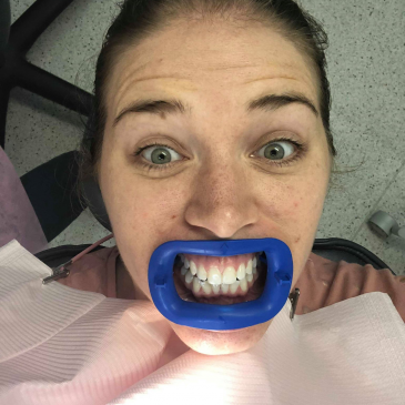 $100 Off Teeth Whitening at Dental House Gladesville
